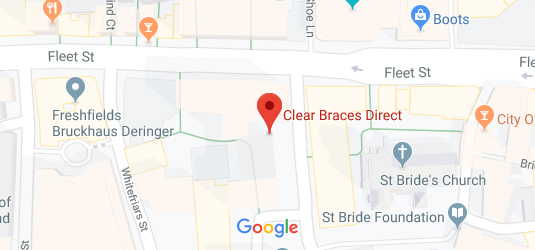 Clear Braces Direct